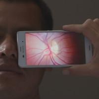 眼の検査を発展途上国にも。失明のリスクを抑える検査機「Peek」 4番目の画像