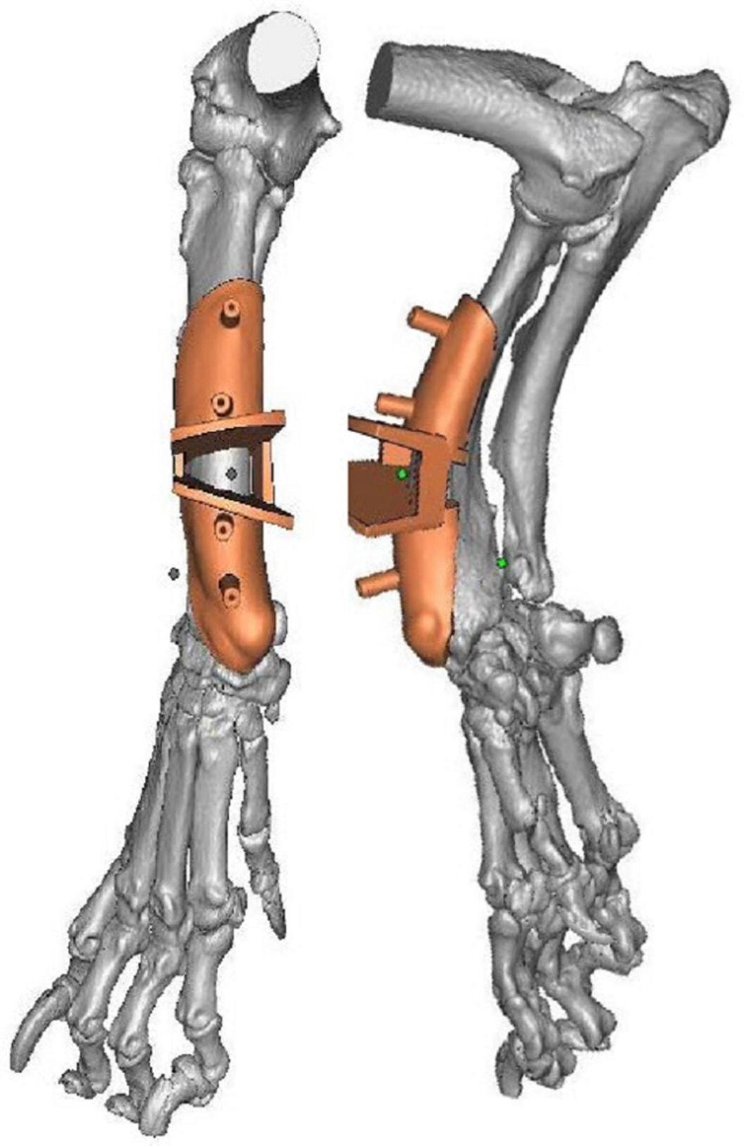 Operationsschablone für Osteotomie Korrektur - Additively