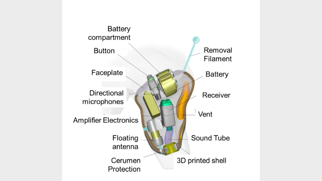 Schematische Skizze der Hörgeräte ©Sonova AG