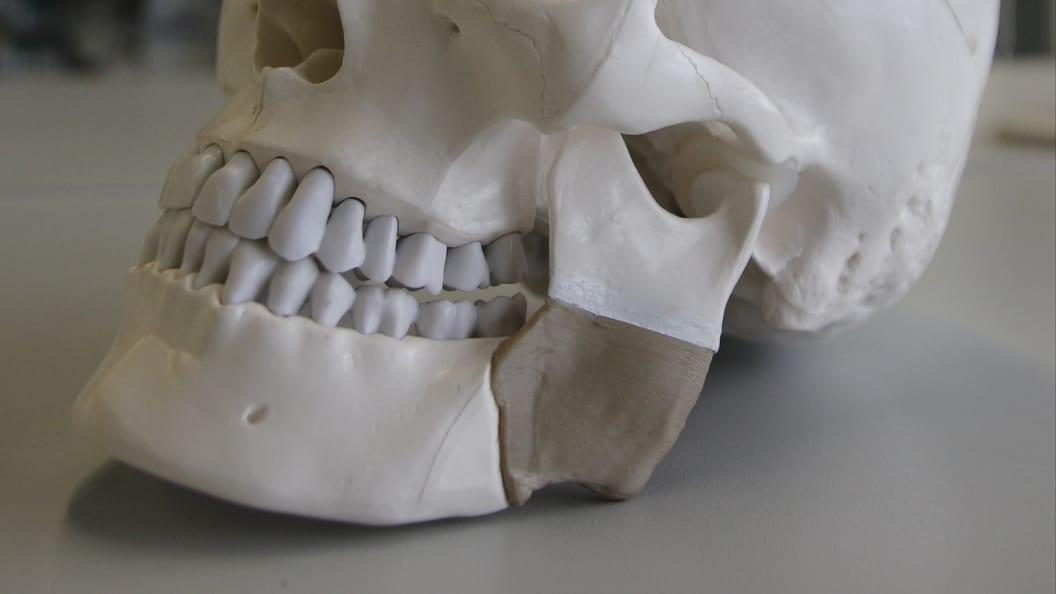 Schädelmodell mit exemplarisch gedrucktem PEEK-Bauteil zur Augmentation eines Kieferdefekts