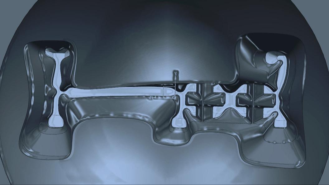 Geometrie des Fliesskanals im Werkzeug
