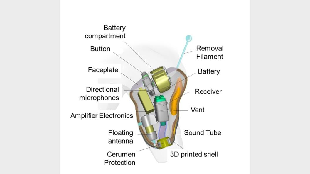 Schematische Skizze der Hörgeräte