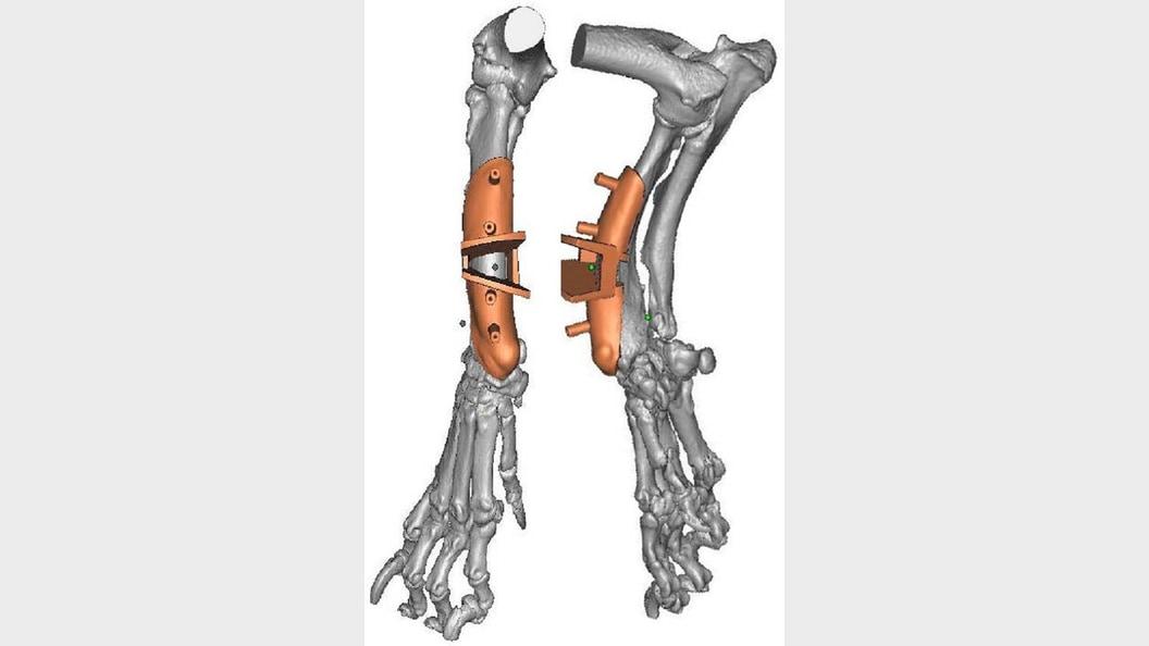Abb. 1: Computersimulation des Osteotomie-Guides auf der dorsalen Seite des Radiusknochens