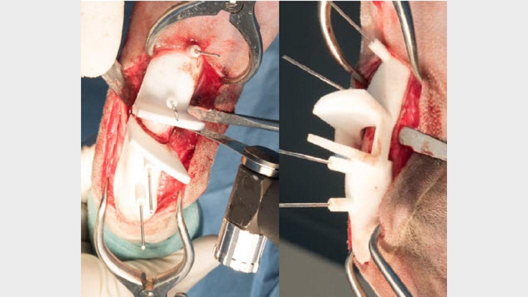 Abb.5: verwendeter Osteotomie-Guide mit Sägeblatt&#x3B; Guide temporär fixiert auf dem Radialknochen
