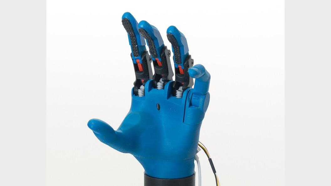 Handprothese aus dem 3D Drucker