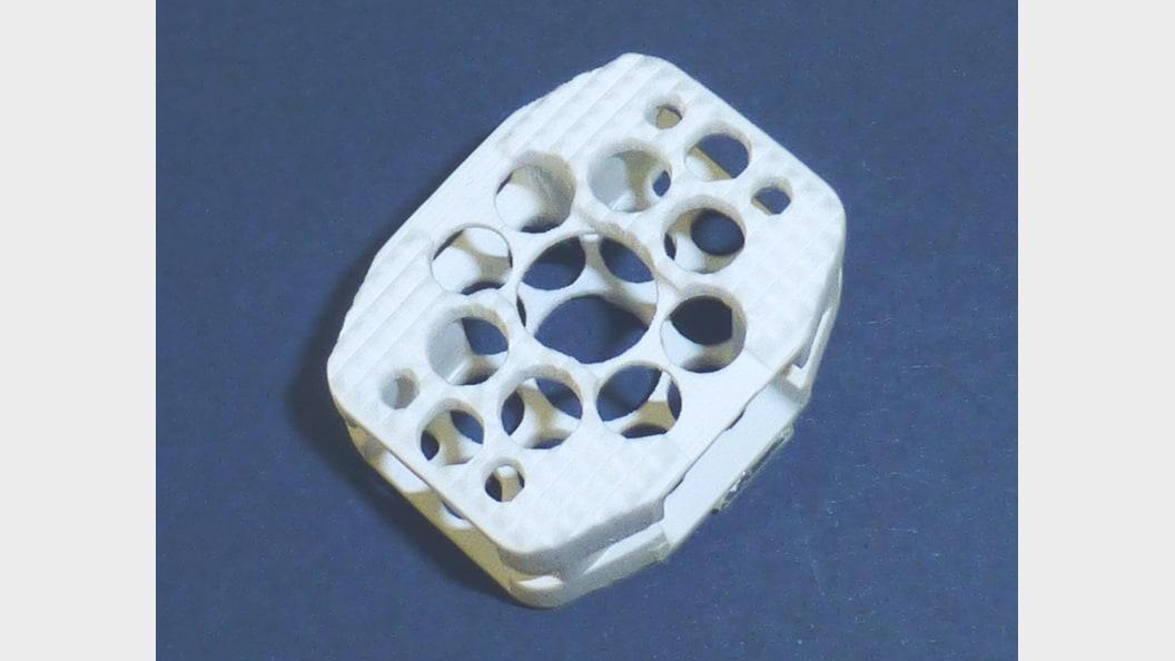 Additiv hergestellte Cage-Implantat in Keramik (Aluminiumoxid) zur Wirbelsäulenstabilisation
