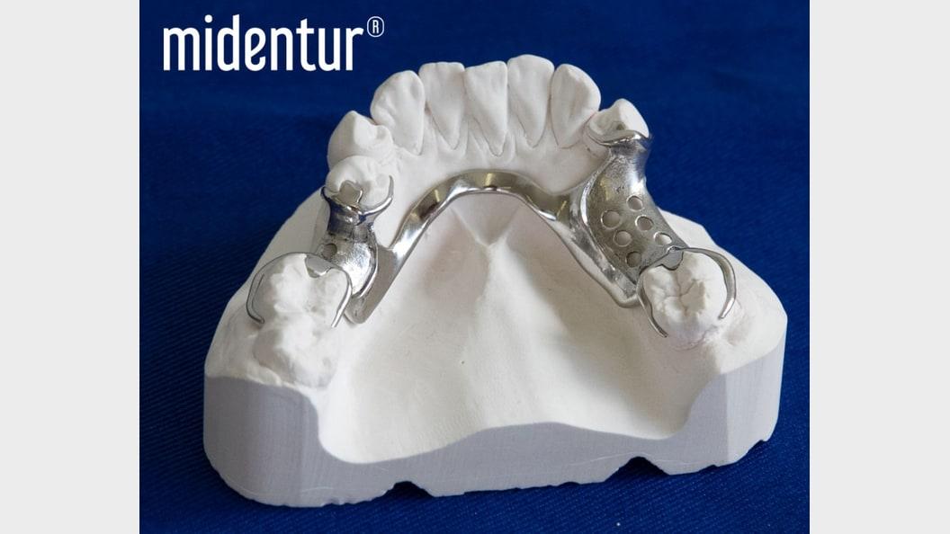 Teilprothese (Modellguss) gefertigt mittels LaserCUSING® / 3D Metalldruck