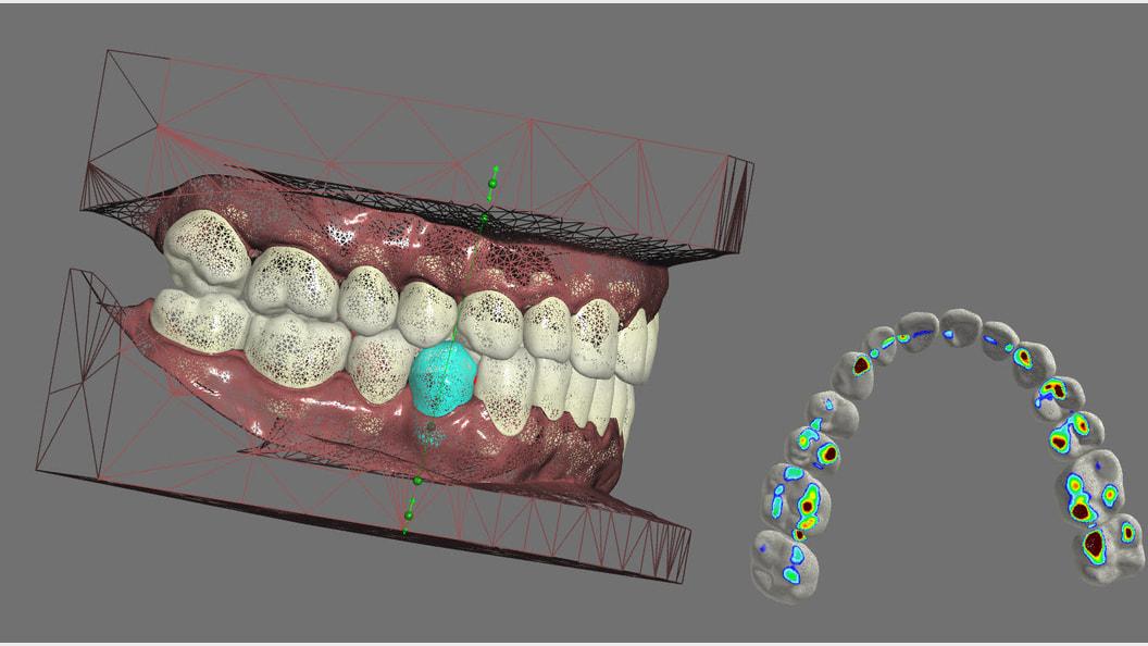 Treatment Planning für nivellipso Aligner