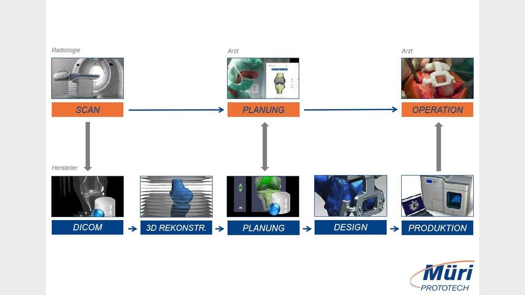 Prozessübersicht vom Scan bis zur Operation