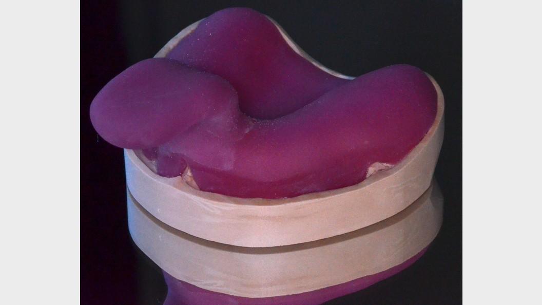 Händisch modellierter Zahnabdruckslöffel