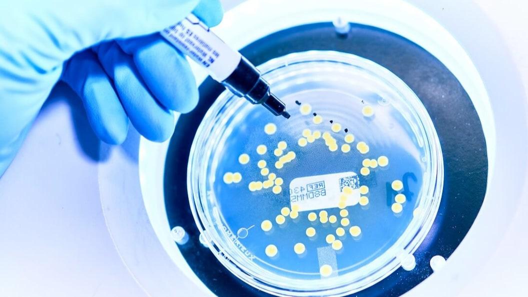 Prüfung auf mikrobielle Reinheit