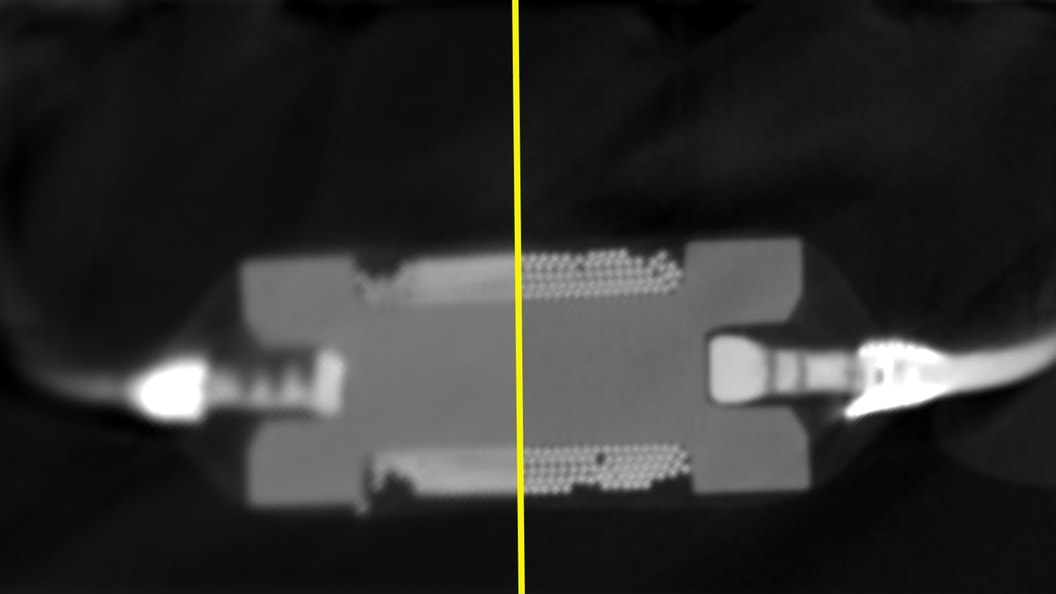"The left side was scanned with ""standard"" target and right side with ""high-flux