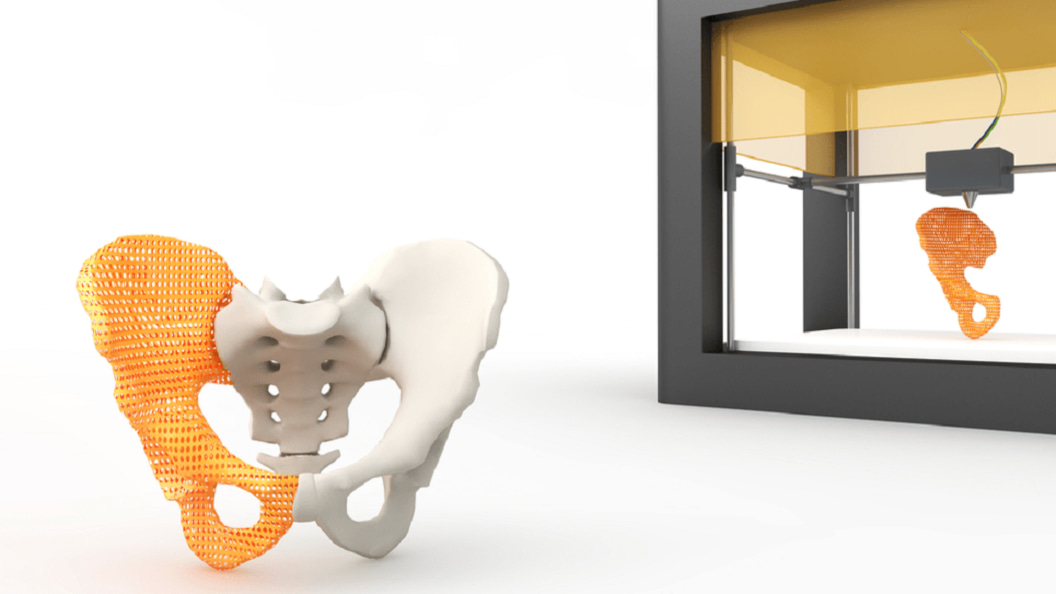 Patient-specific, additive manufactured products at Innovation Symposium of Swiss Medtech Expo