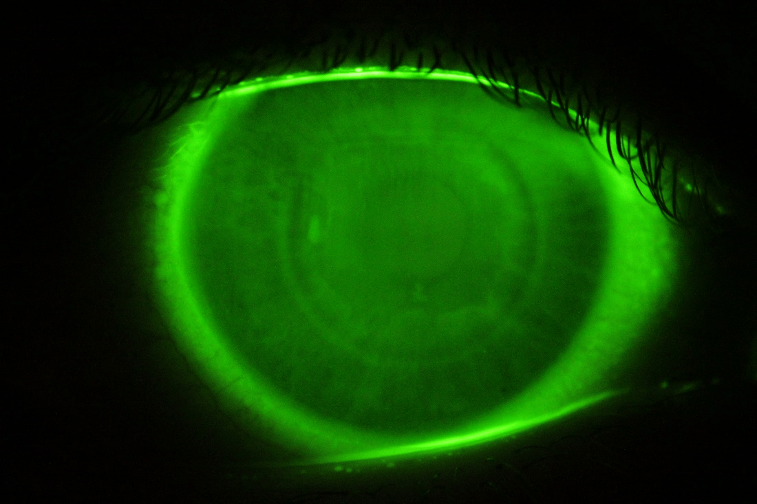 Considerations for lens parameters and corneal indentation following orthokeratology