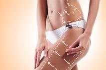 Celulitida a jak na ni