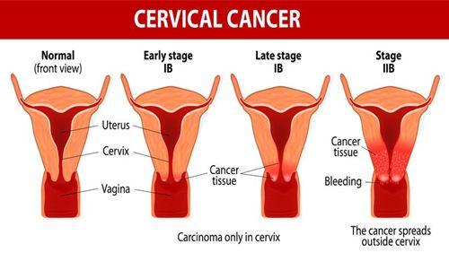 Cara Mengobati Kanker Serviks Rahim yang Harus Diketahui Wanita