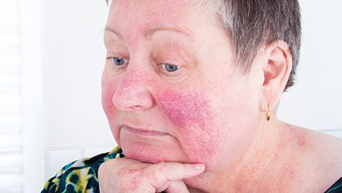 8 Cara Mengatasi Penyakit Lupus Tanpa Bahan-bahan Kimia