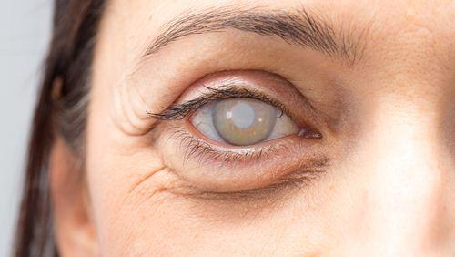 4 Jenis Obat Mata Katarak di Apotik