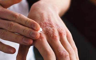 Komplikasi Berbahaya Akibat Psoriasis