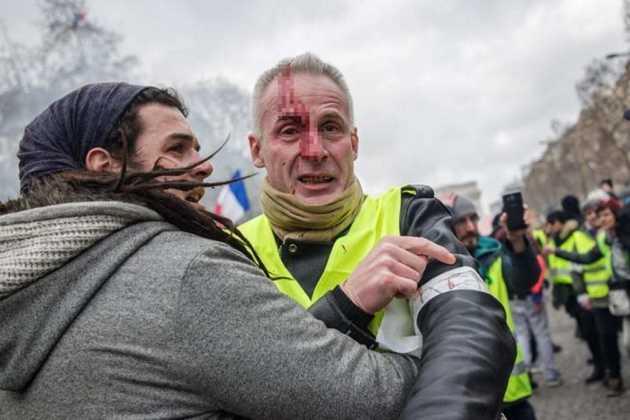 Yellow Vest protestor
