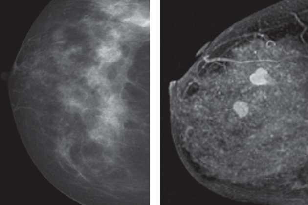 Breast cancer MRI