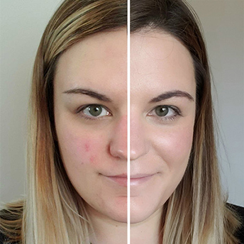 Using Glow Time Foundation to cover redness