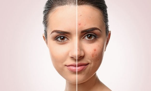 Break The Acne Chain With These Tips