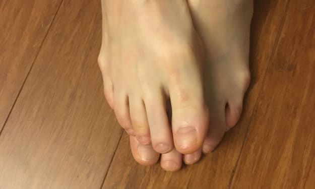 Unpolished Toes