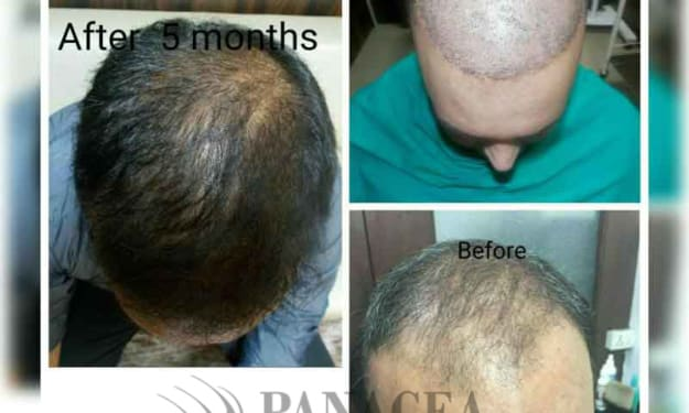 Facts and Myths about Hair Transplant Treatment