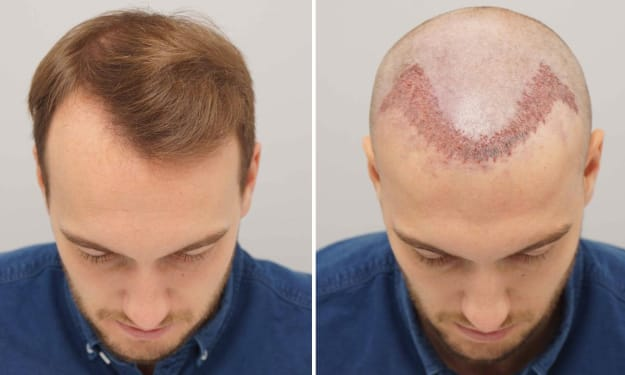 Reform your look and regain confidence with Hair Transplant Clinic
