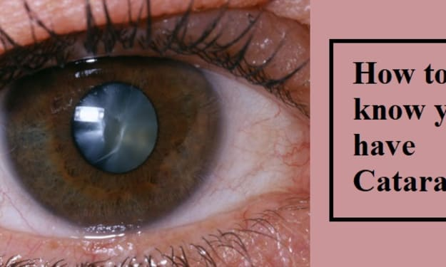 How to know you have Cataracts