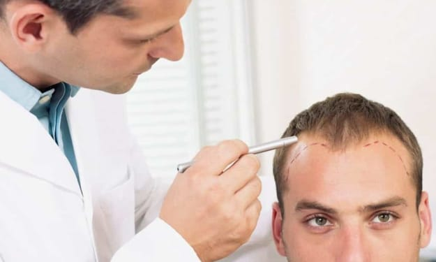 How To Find The Best Hair Transplant Clinic In Udaipur?