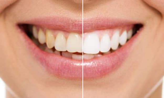 Things You Need to Know about Teeth Bonding