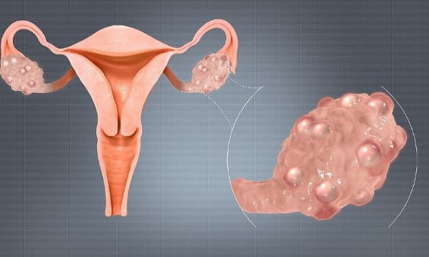 What Women Should Know About Polycystic Ovary Syndrome (PCOS)