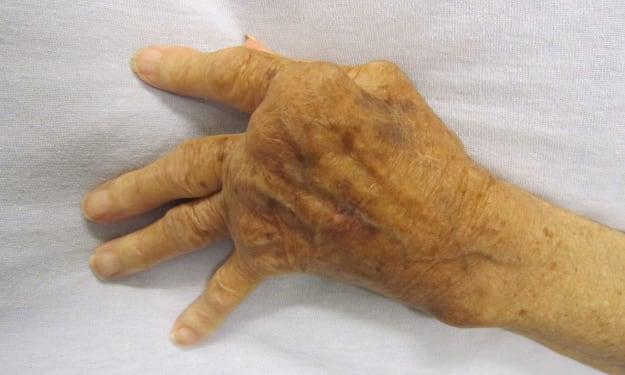 Is a Cure for Rheumatoid Arthritis on the Horizon?