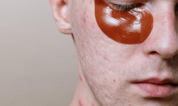 Acne Of Skin