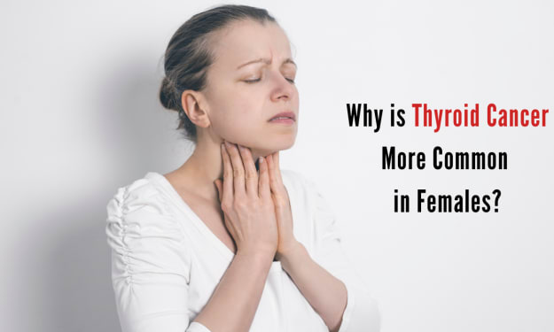 Why Is Thyroid Cancer More Common in Females?