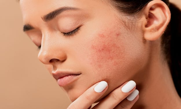 Acne Diet: Only Eat Healthy Foods