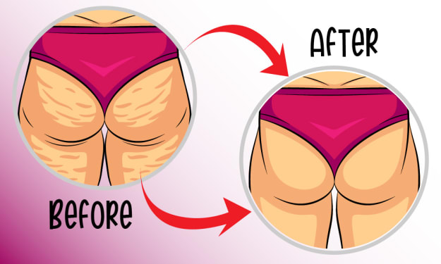 8 Effective Sure-Fire Tips To Get Rid Of Cellulite Fast