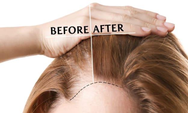 Female Hair Transplant in Vashi, Navi Mumbai