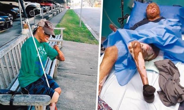 Instagram and Facebook's Algorithms Target Disabled People