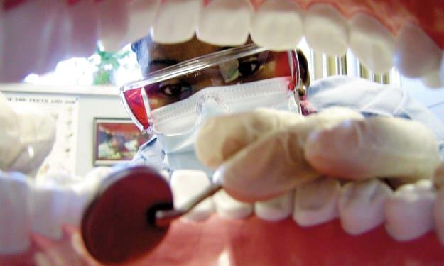Some FAQs on Dentures