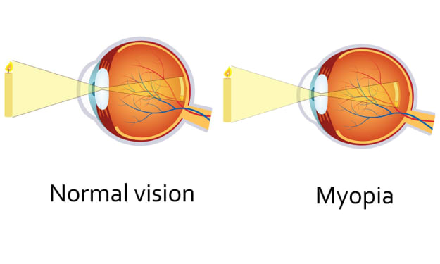 Myopia—A Global Health Crisis: What Treatment Options are Available?