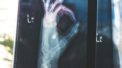 Arthritis: Maintaining Your Quality of Life