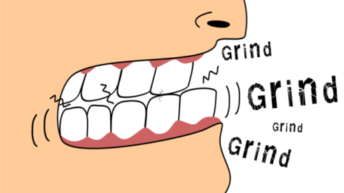 How Dangerous Is Bruxism and How to Get Rid of It?