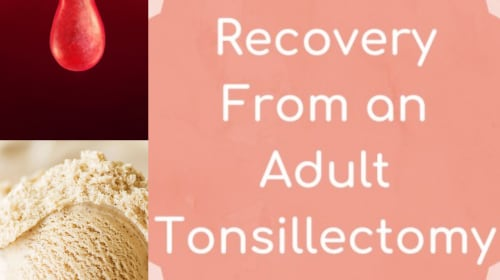 Getting a Tonsillectomy as an Adult: What to Expect from Start to Finish