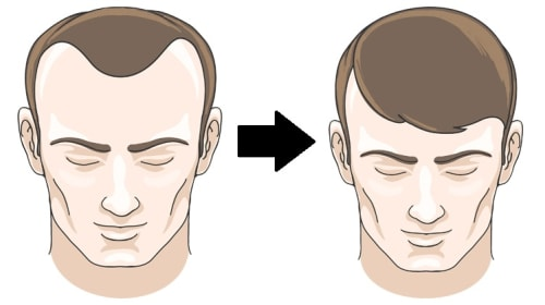 How Will a Hair Transplant Change Your Life: Must Read