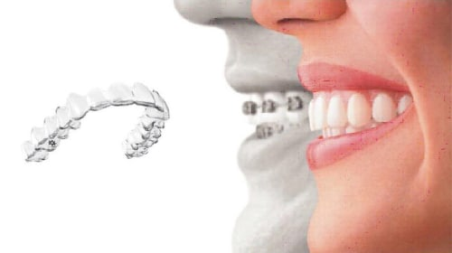 Why Dental Patients Are Flocking To Invisalign