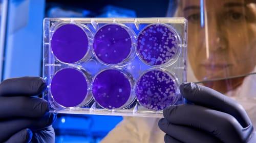 Five Ways We Survive a Pandemic