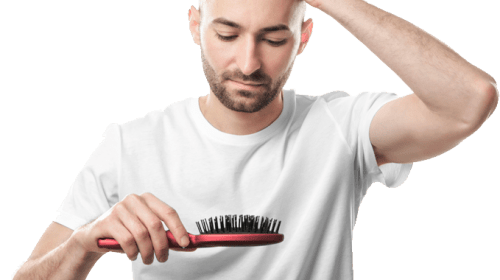 Are you also suffering from hair loss?